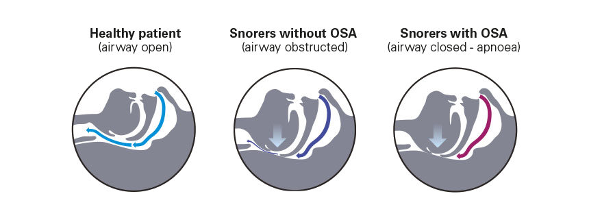 The airway when you snore apnoea-ResMed UK