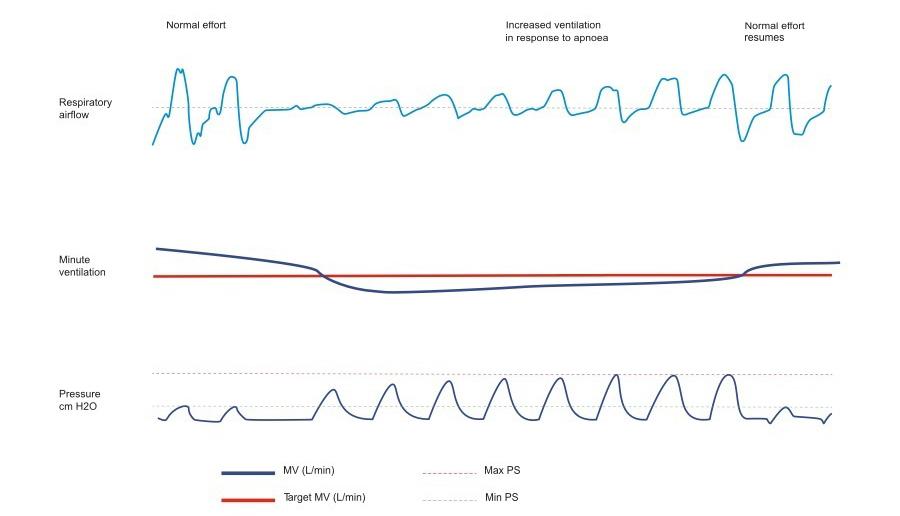 minute-ventilation-aircurve10cs-pacewave-resmed